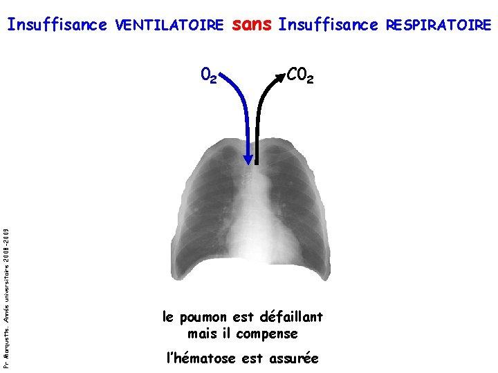 Insuffisance VENTILATOIRE sans Insuffisance RESPIRATOIRE Pr Marquette. Année universitaire 2008 -2009 02 C 02