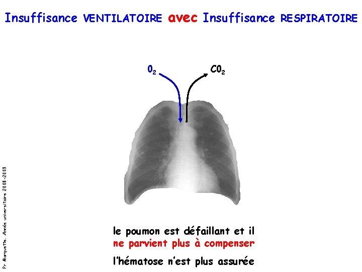 Insuffisance VENTILATOIRE avec Insuffisance RESPIRATOIRE Pr Marquette. Année universitaire 2008 -2009 02 C 02