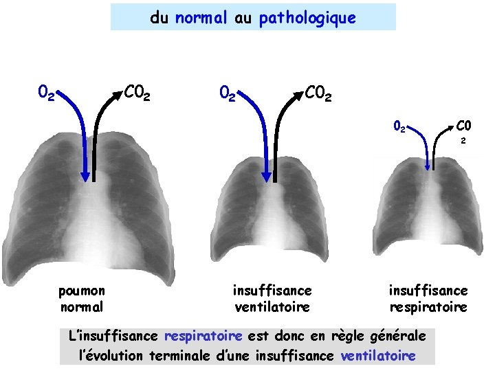 du normal au pathologique 02 C 02 02 poumon normal insuffisance ventilatoire C 0