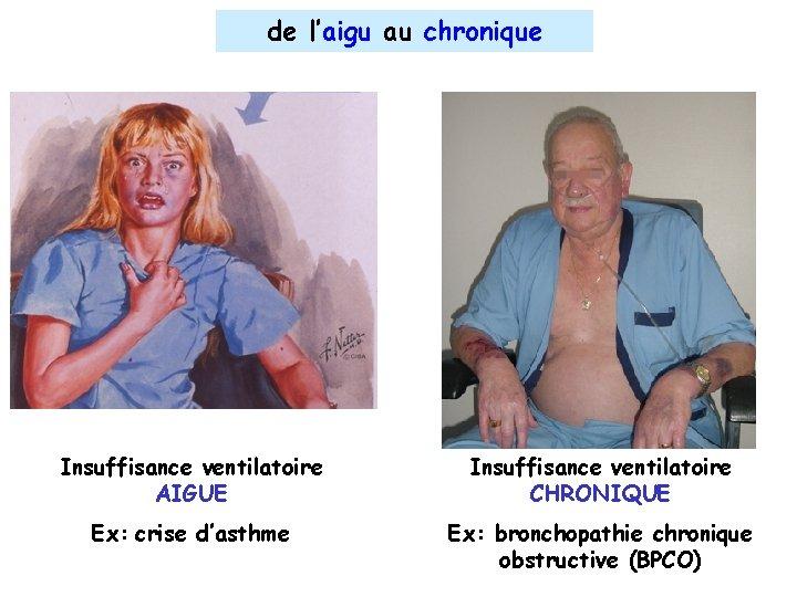 de l'aigu au chronique Insuffisance ventilatoire AIGUE Ex: crise d'asthme Insuffisance ventilatoire insuffisance CHRONIQUE