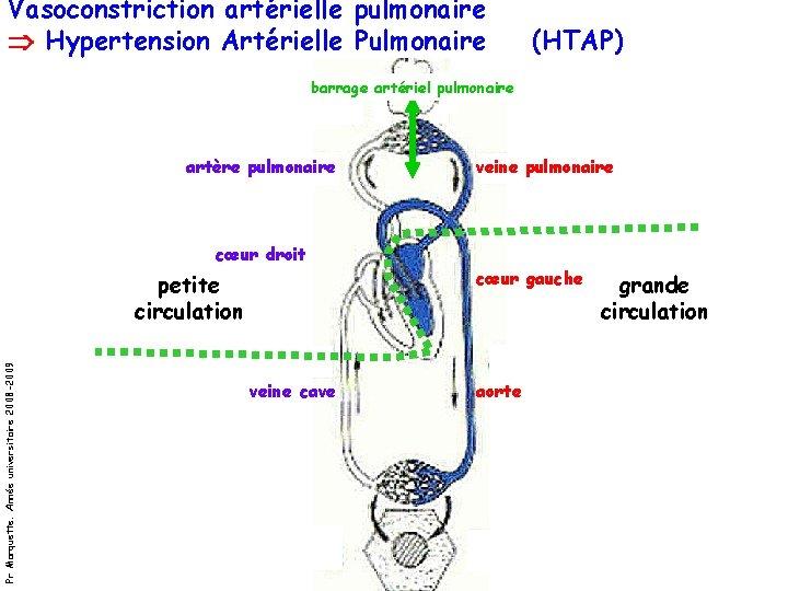 Vasoconstriction artérielle pulmonaire Hypertension Artérielle Pulmonaire (HTAP) barrage artériel pulmonaire artère pulmonaire veine pulmonaire