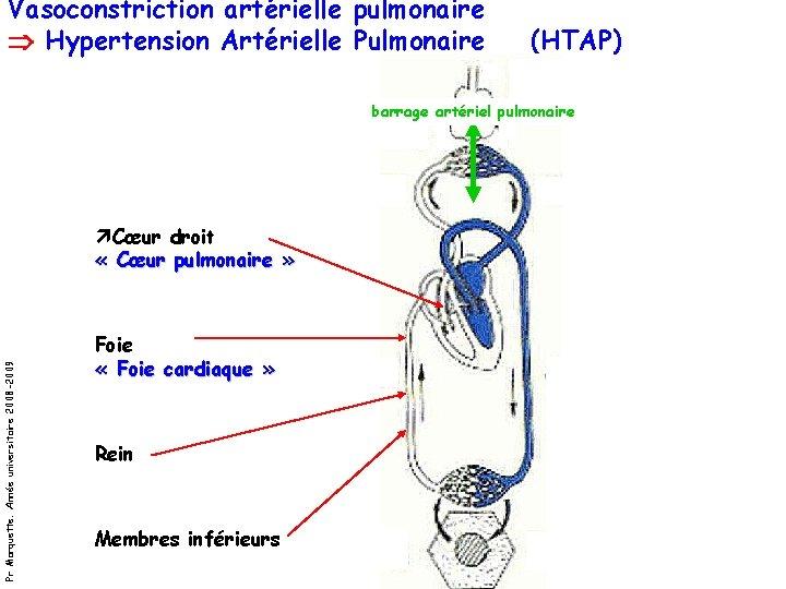 Vasoconstriction artérielle pulmonaire Hypertension Artérielle Pulmonaire (HTAP) barrage artériel pulmonaire Pr Marquette. Année universitaire
