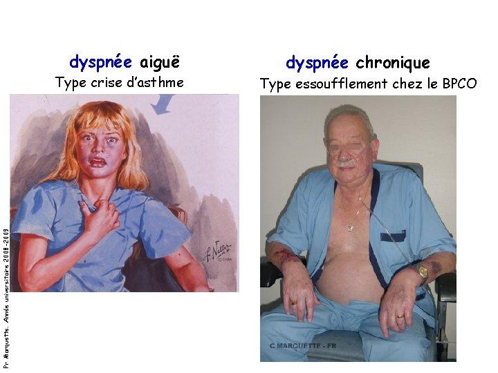 dyspnée aiguë Pr Marquette. Année universitaire 2008 -2009 Type crise d'asthme dyspnée chronique Type