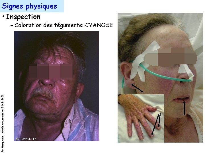 Signes physiques • Inspection Pr Marquette. Année universitaire 2008 -2009 – Coloration des téguments: