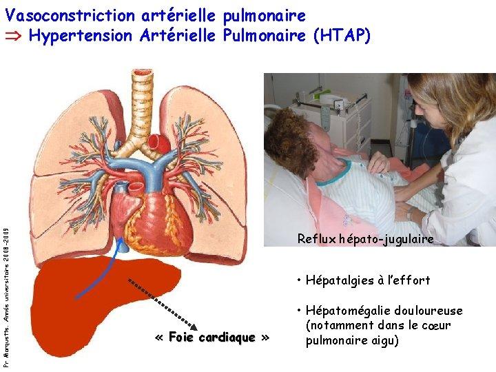 Pr Marquette. Année universitaire 2008 -2009 Vasoconstriction artérielle pulmonaire Hypertension Artérielle Pulmonaire (HTAP) Reflux