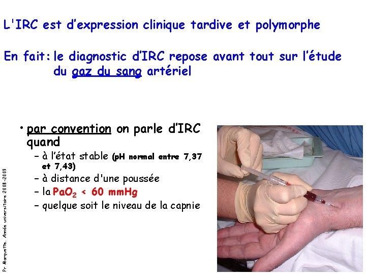 L'IRC est d'expression clinique tardive et polymorphe En fait: le diagnostic d'IRC repose avant