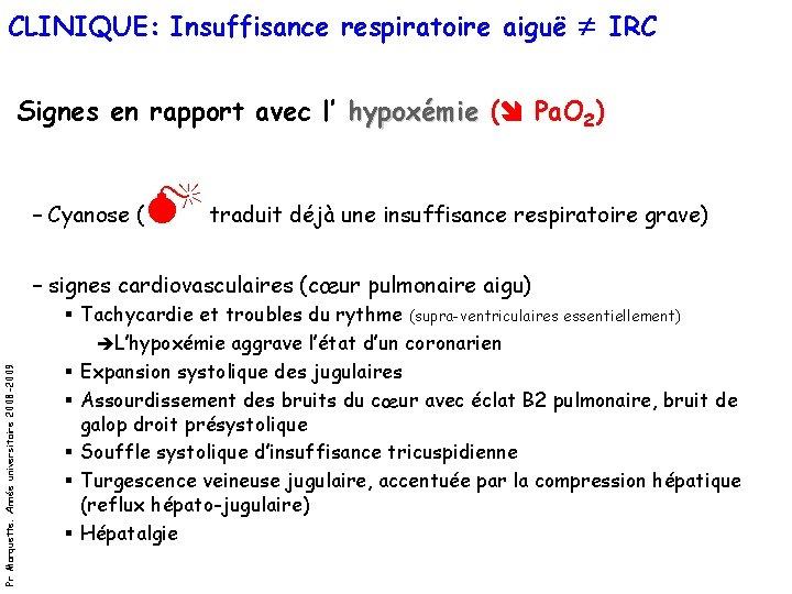CLINIQUE: Insuffisance respiratoire aiguë IRC Signes en rapport avec l' hypoxémie ( Pa. O