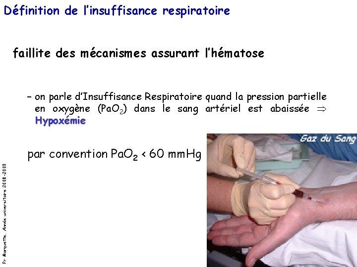 Définition de l'insuffisance respiratoire faillite des mécanismes assurant l'hématose – on parle d'Insuffisance Respiratoire