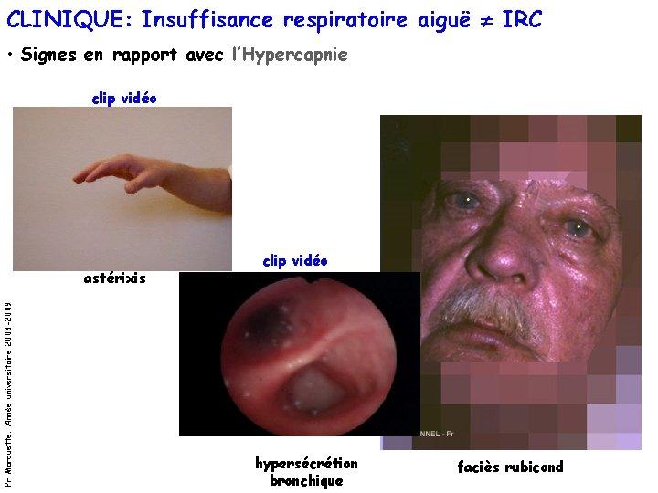 CLINIQUE: Insuffisance respiratoire aiguë IRC • Signes en rapport avec l'Hypercapnie clip vidéo Pr