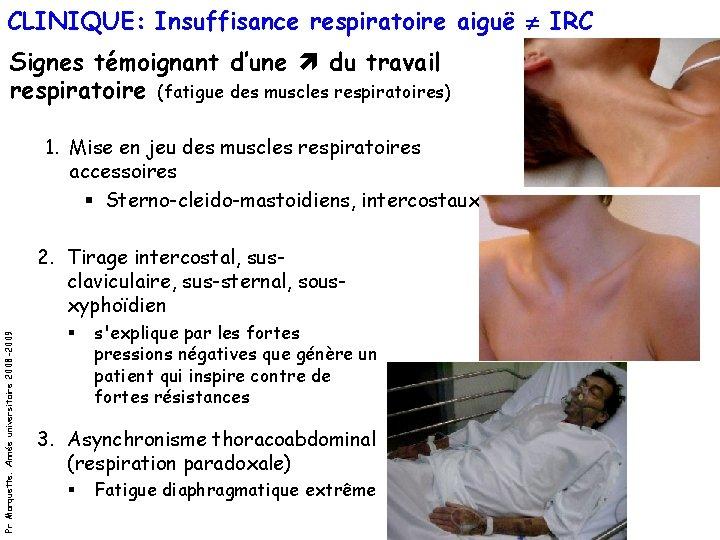 CLINIQUE: Insuffisance respiratoire aiguë IRC Signes témoignant d'une du travail respiratoire (fatigue des muscles