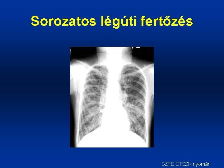 röntgensugárzás, mint távollátás fiatalságban