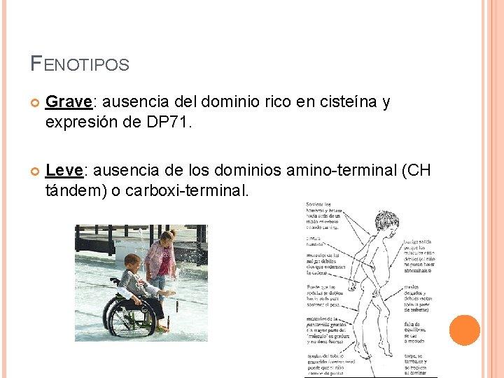 FENOTIPOS Grave: ausencia del dominio rico en cisteína y expresión de DP 71. Leve: