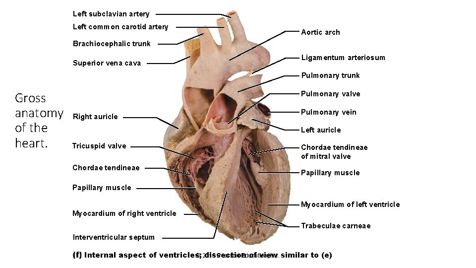 Left subclavian artery Left common carotid artery Aortic arch Brachiocephalic trunk Superior vena cava