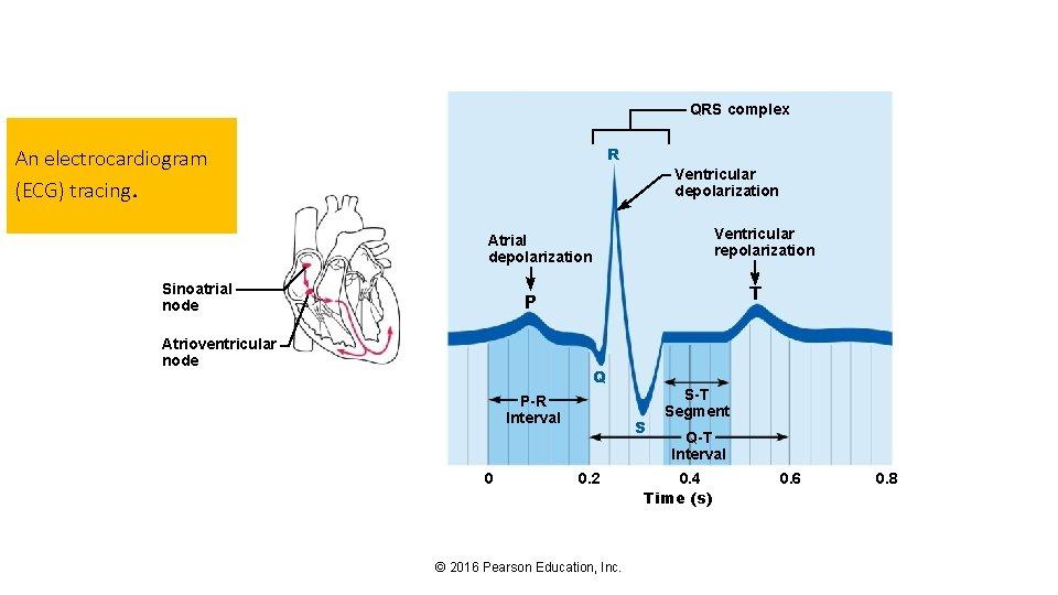 QRS complex R An electrocardiogram (ECG) tracing. Ventricular depolarization Ventricular repolarization Atrial depolarization Sinoatrial