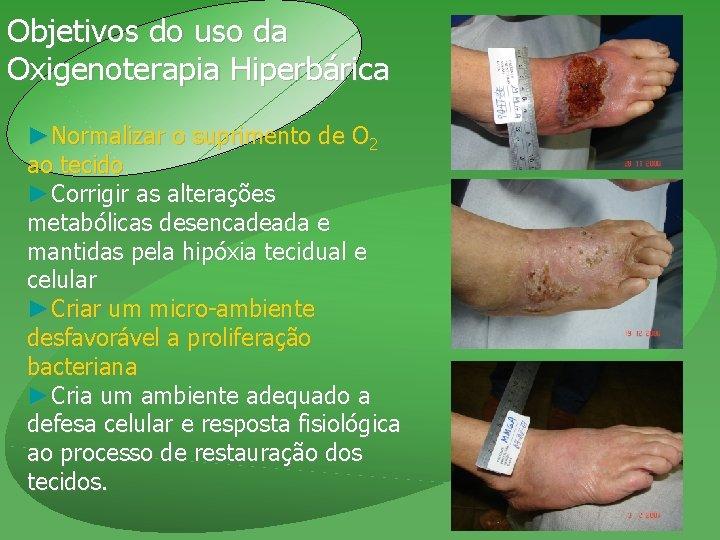 Objetivos do uso da Oxigenoterapia Hiperbárica ►Normalizar o suprimento de O 2 ao tecido