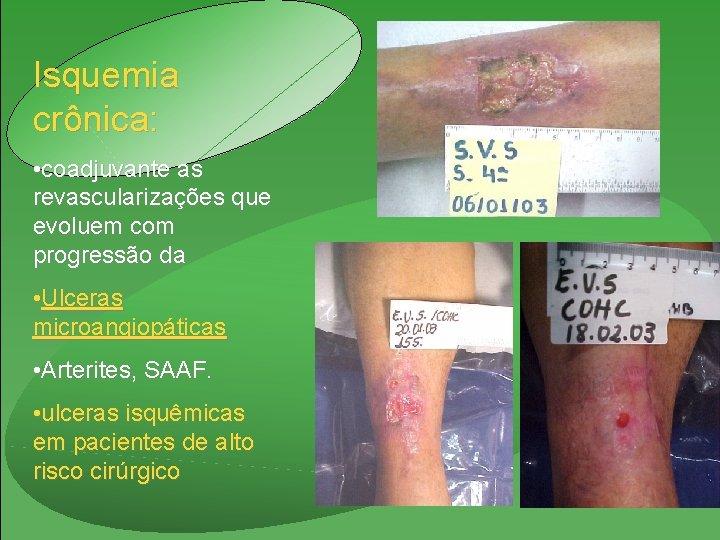 Isquemia crônica: • coadjuvante as revascularizações que evoluem com progressão da • Ulceras microangiopáticas