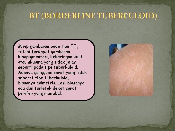 BT (BORDERLINE TUBERCULOID) Mirip gambaran pada tipe TT, tetapi terdapat gambaran hipopigmentasi, kekeringan kulit