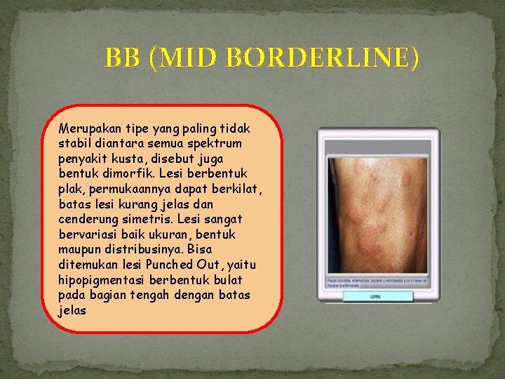 BB (MID BORDERLINE) Merupakan tipe yang paling tidak stabil diantara semua spektrum penyakit kusta,