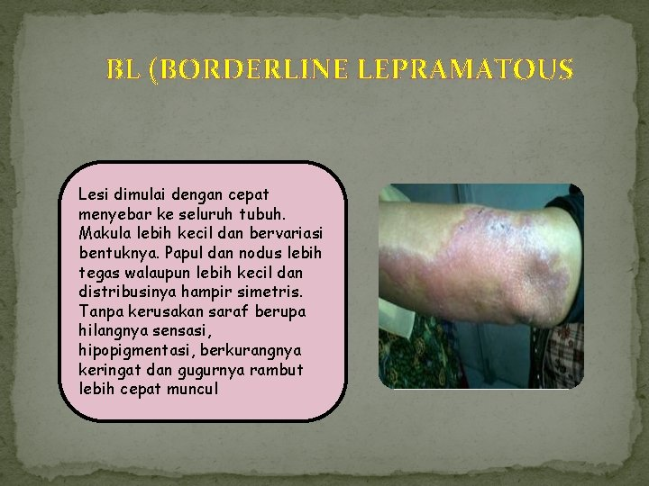 BL (BORDERLINE LEPRAMATOUS Lesi dimulai dengan cepat menyebar ke seluruh tubuh. Makula lebih kecil