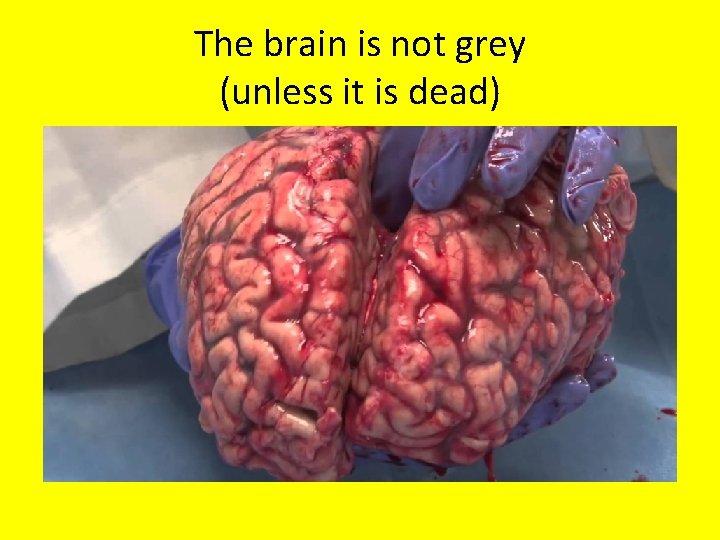 The brain is not grey (unless it is dead)