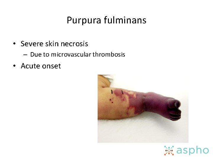 Purpura fulminans • Severe skin necrosis – Due to microvascular thrombosis • Acute onset