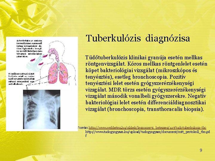 mi a tuberkulózis gyanúja