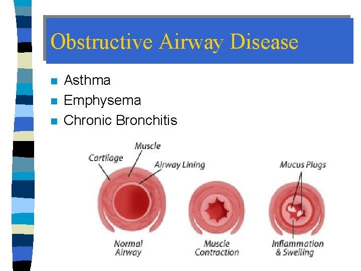 Obstructive Airway Disease n n n Asthma Emphysema Chronic Bronchitis