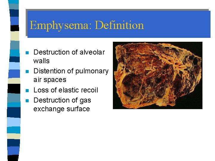 Emphysema: Definition n n Destruction of alveolar walls Distention of pulmonary air spaces Loss