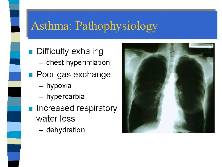 Asthma: Pathophysiology n Difficulty exhaling – chest hyperinflation n Poor gas exchange – hypoxia