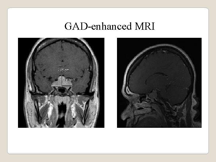 GAD-enhanced MRI
