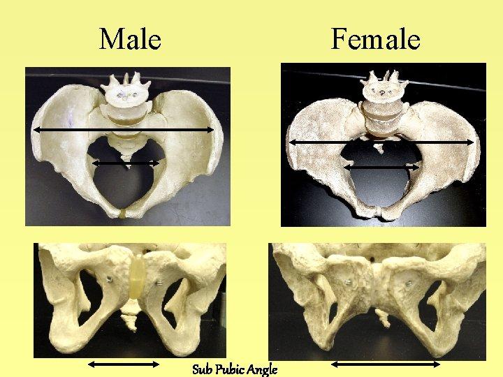 Male Female Sub Pubic Angle