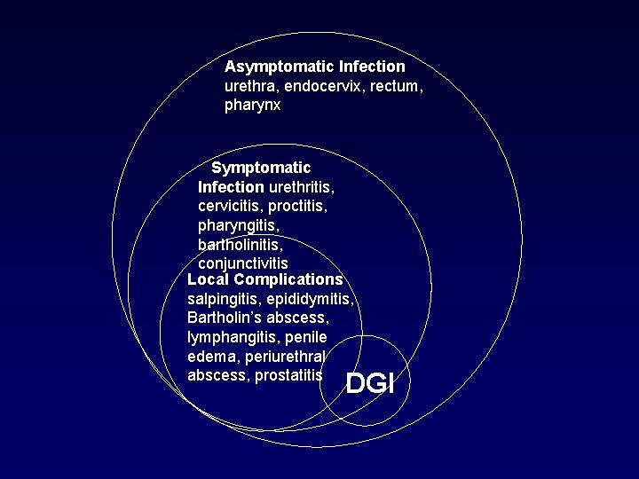 Faringit prosztatitis)