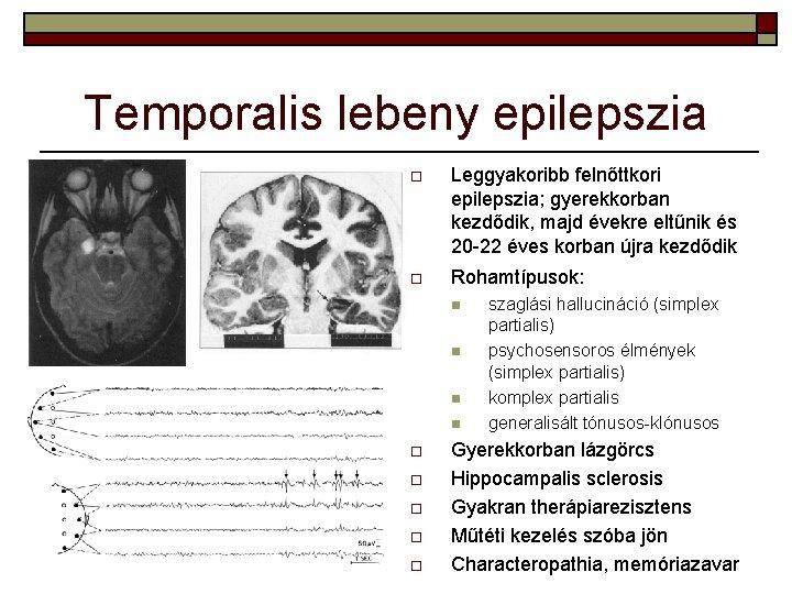 hogy az epilepszia hogyan befolyásolja a látást)