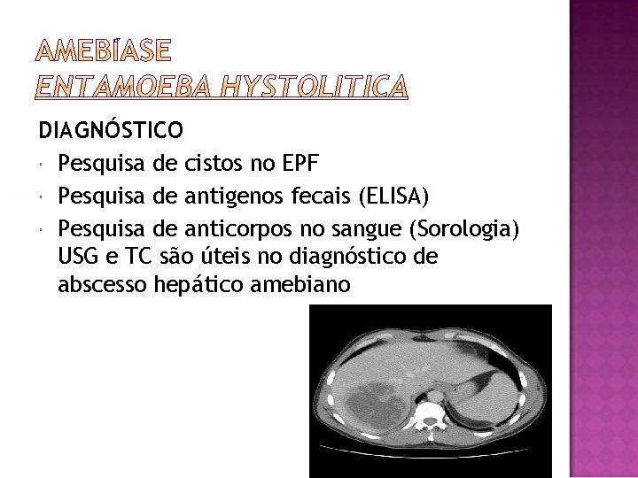 DIAGNÓSTICO Pesquisa de cistos no EPF Pesquisa de antigenos fecais (ELISA) Pesquisa de anticorpos