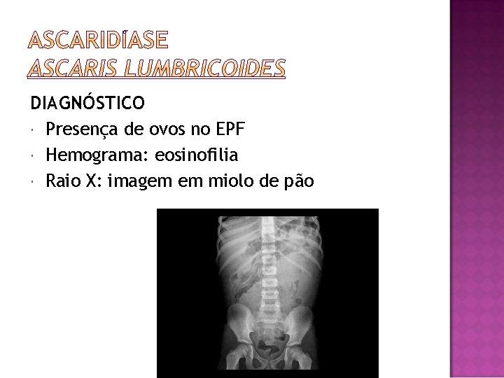 DIAGNÓSTICO Presença de ovos no EPF Hemograma: eosinofilia Raio X: imagem em miolo de