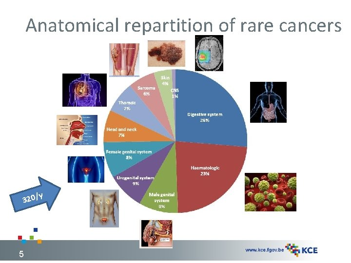Anatomical repartition of rare cancers 320/ 5 y