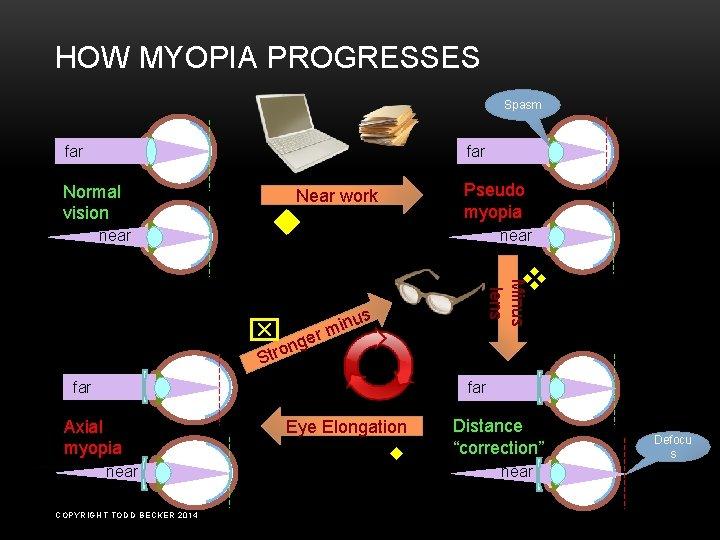 myopia pseudo látás plusz 1 5 van