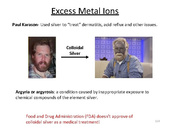 """Excess Metal Ions Paul Karason‐ Used silver to """"treat"""" dermatitis, acid reflux and other"""