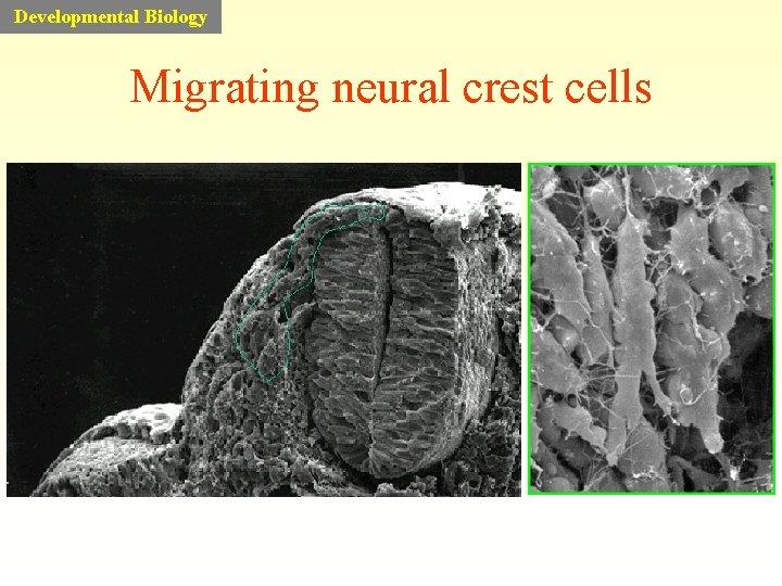 Developmental Biology Migrating neural crest cells
