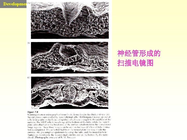 Developmental Biology 神经管形成的 扫描电镜图
