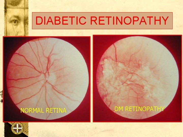 DIABETIC RETINOPATHY NORMAL RETINA DM RETINOPATHY