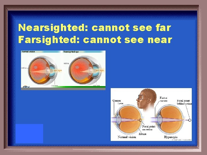 Nearsighted: cannot see far Farsighted: cannot see near