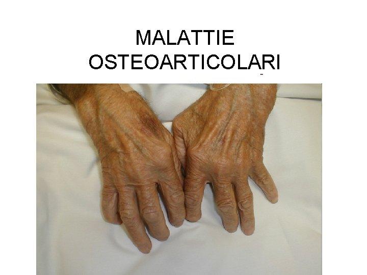 MALATTIE OSTEOARTICOLARI