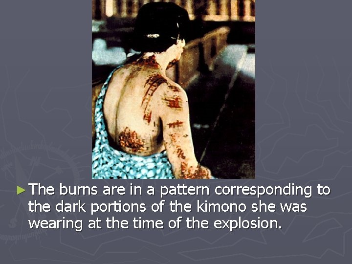 ► The burns are in a pattern corresponding to the dark portions of the