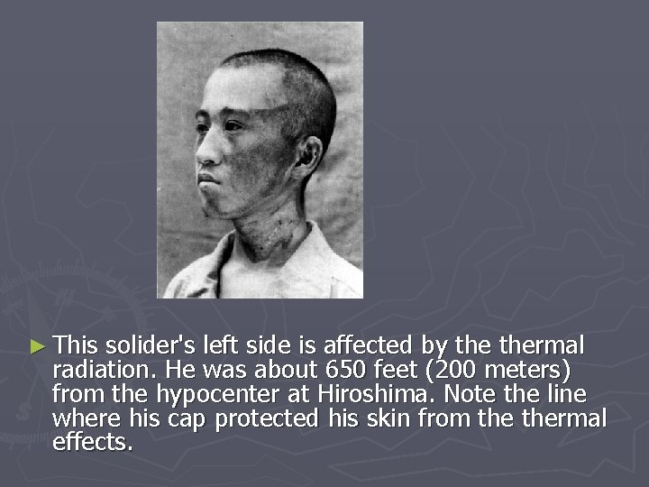 ► This solider's left side is affected by thermal radiation. He was about 650