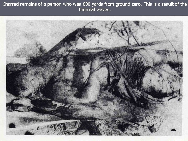 Charred remains of a person who was 800 yards from ground zero. This is