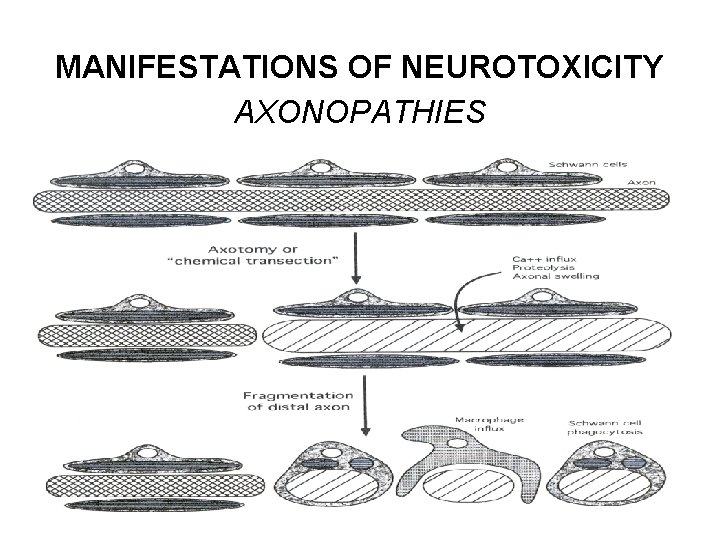 MANIFESTATIONS OF NEUROTOXICITY AXONOPATHIES