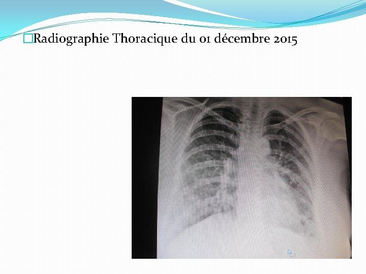 �Radiographie Thoracique du 01 décembre 2015