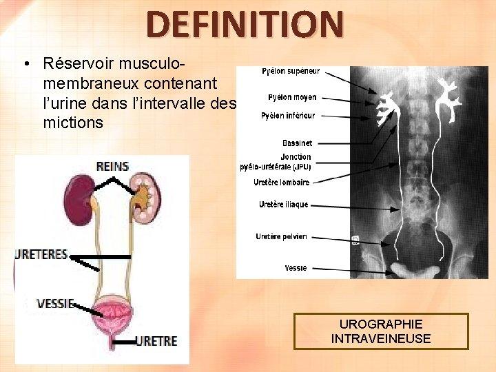 DEFINITION • Réservoir musculomembraneux contenant l'urine dans l'intervalle des mictions UROGRAPHIE INTRAVEINEUSE