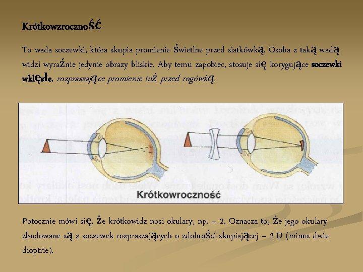 Krótkowzroczność To wada soczewki, która skupia promienie świetlne przed siatkówką. Osoba z taką wadą